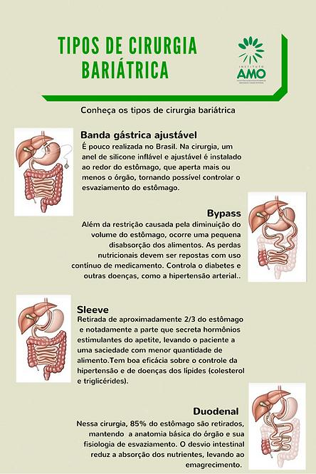 tratamento da obesidade Ceará, cirurgia bariátrica, instituto AMO, capella, redução de estômago