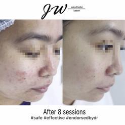 Signature 3 steps laser facial