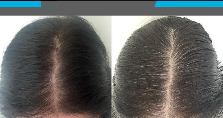 Female Alopecia (Hair Loss)