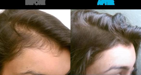 Female Alopecia