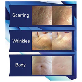Rejuvapen Microneedling available at Zing Health and Beauty Salon in Duns Scottish Borders