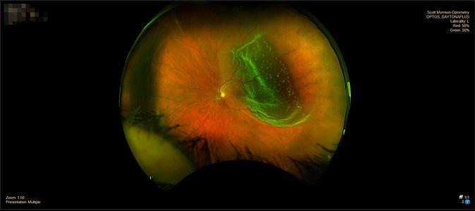 retinal tear.jpg