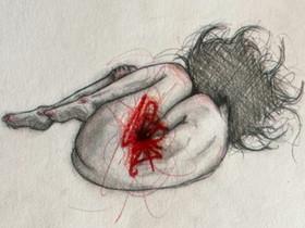 Sofie tegner sin endomtriose: Det gør noget uoverskueligt konkret