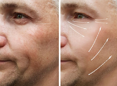 man, wrinkles on face before and after p