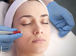 Medical-Microdermabrasion-Image.jpg