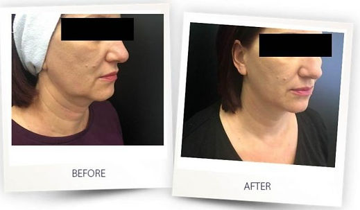 Before-after-face-contouring_dr_aleksand