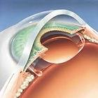 Cataract Surgery, Geelong