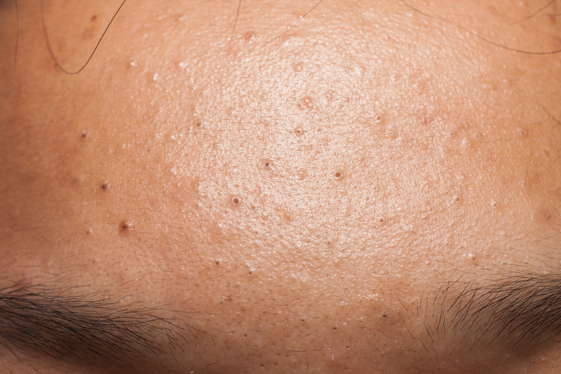 home remedies for subclinical acne