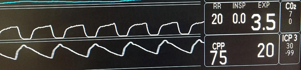 ICP waveform