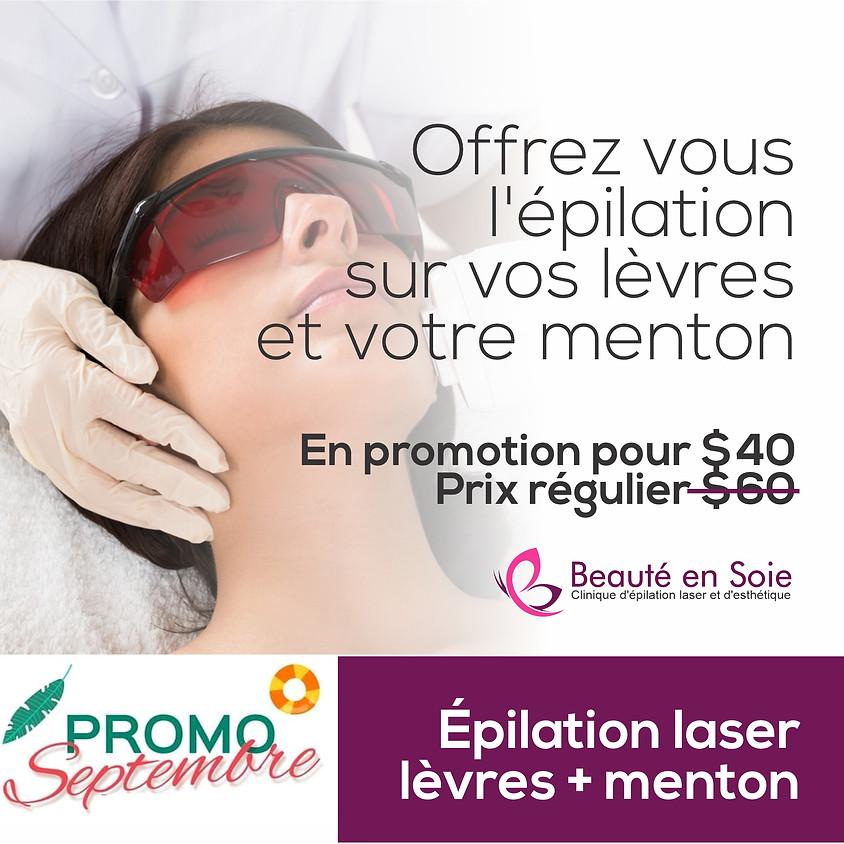Épilation laser lèvre supérieure + menton pour femmes