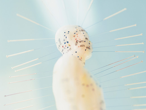 Acupuncture and Parkinson's Disease