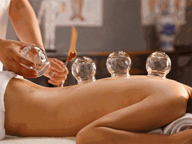 Cupping - Massage & Dry/Fire