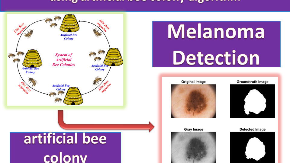 Matlab Implementation of Melanoma detection using Artificial Bee Colony