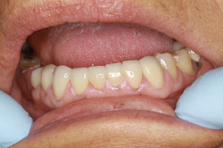 Porcelain on Zirconia Crowns