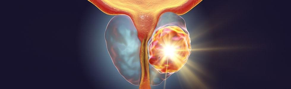 urologue-montauban-cancer-prostate_edited_edited.jpg
