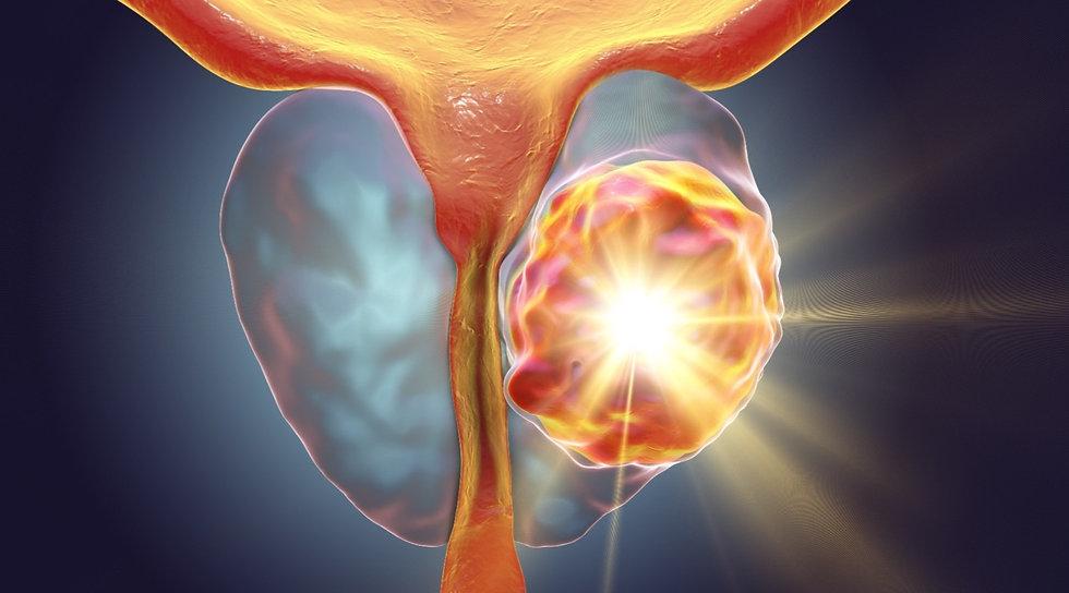 cancer-prostate-montauban.jpg