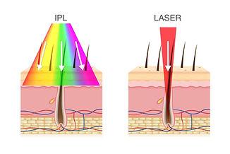 Laser-vs-ipl-3000.jpg