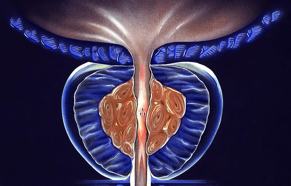 hypertrophie-prostate-montauban.jpeg