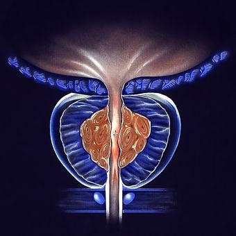 urologue-montauban-prostate.jpeg