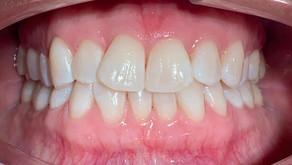 Lust auf strahlend weiße Zähne?