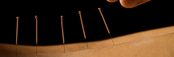 Acupuncture needles in patient's back