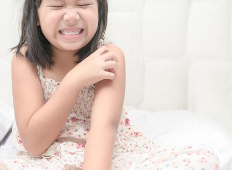 嬰兒濕疹可以用類固醇嗎?