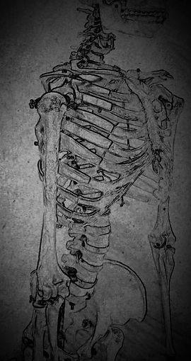 Squelette, image par Philippe Denis, Longueuil, Rive Sud de Montréal