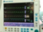Monitor Multiparametrico para anestesia.