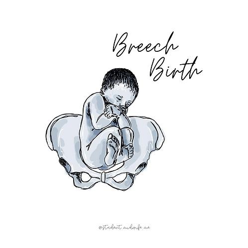 Breech Birth Pocket Cards
