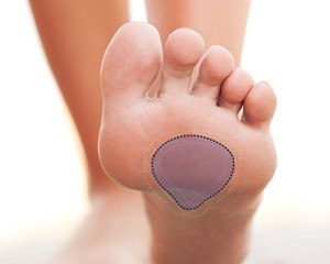 Are Your Foot Orthotics giving you enough Metatarsal Support?