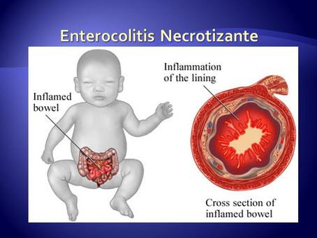 Enterocolitis necrotizante (NEC) en PREMATUROS