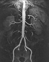 MRI Angiogram