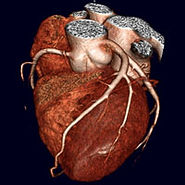 Cardiac CT