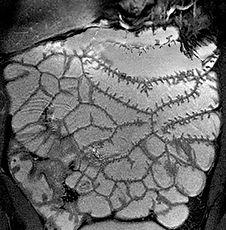 MRI Small bowel