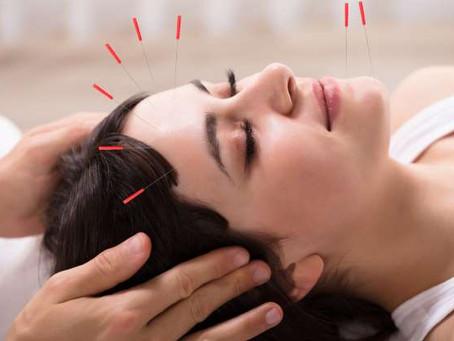 Todo lo que tienes que saber sobre los meridianos : los canales de la acupuntura.