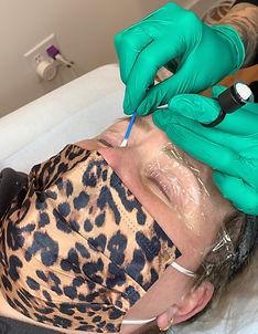 applying numbing cream for permanent eyeliner procedure