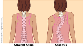 How Severe Can Scoliosis Get?