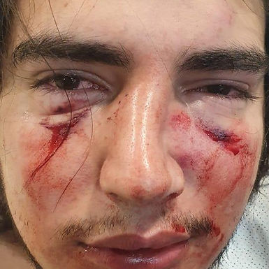 Cuatro rugbiers fueron denunciados por una brutal golpiza a un joven de 18 años