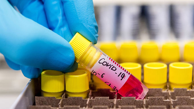 Confirmaron seis nuevos casos de coronavirus en Monte Cristo