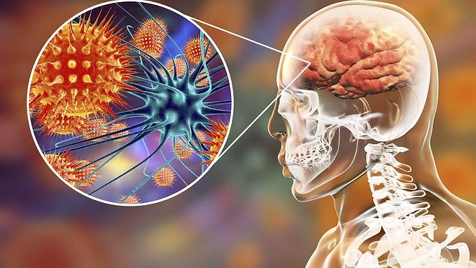 EFEMÉRIDES: 24 de abril, Día Mundial contra la Meningitis