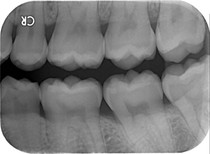 X-Ray010.jpg