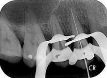 X-Ray002.jpg