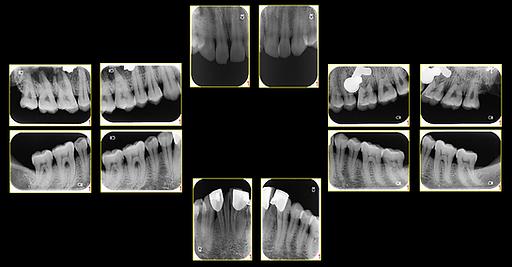 牙位圖.png