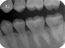 X-Ray025.jpg