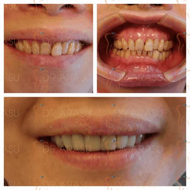 Aesthetic Dental Work