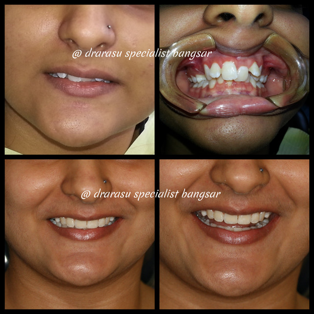 Smile confidently.  It's never too late to consider correcting your teeth with braces.