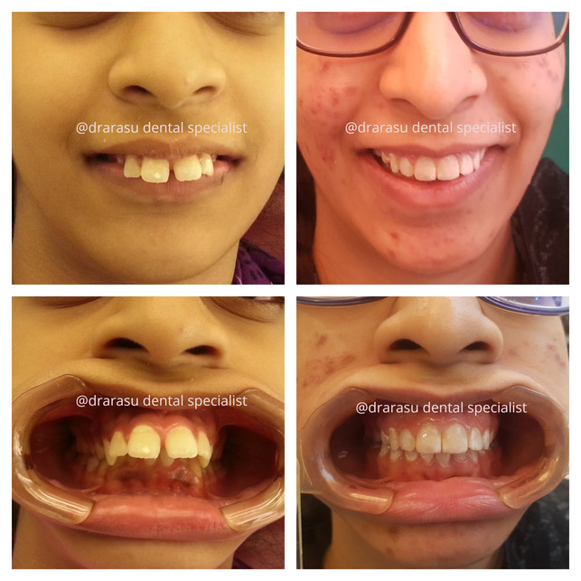 Braces can establish the foundation of life time of improved oral health while helping your children look their best.
