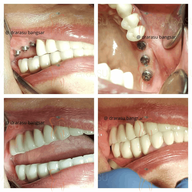 Posterior Implant
