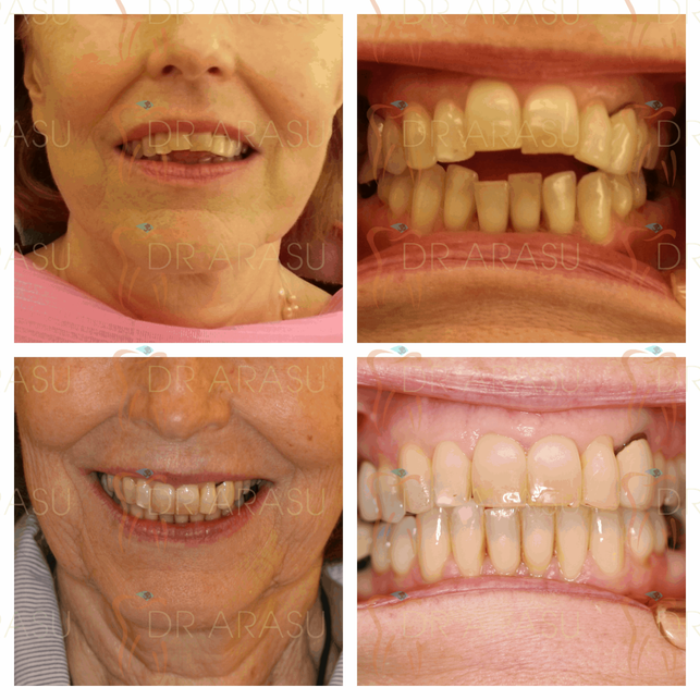 There is no age limit for braces. A variety of teeth correction and braces option are available to suit all age group.