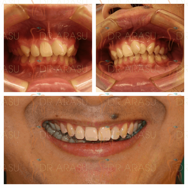 Braces are the beginning but the system makes the smile. Case completed with Damon Self Ligation brackets without extraction. A new clinically proven treatment approach